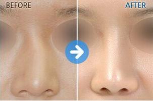 玉林华美—玉林短鼻矫正术前术后小贴士