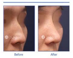 玉林华美—玉林鼻部整形的适合人群