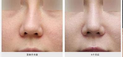 玉林华美—玉林歪鼻矫正需要注意的地方