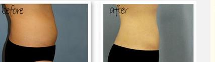 玉林华美—玉林腰腹吸脂手术的效果如何?