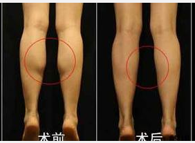 玉林华美—玉林腿部吸脂是怎样进行的?