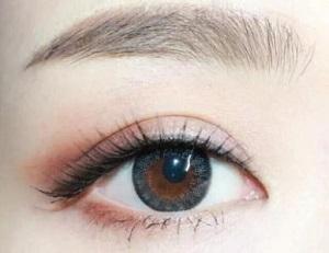 玉林割双眼皮怎么避免术后出现并发症的情况1