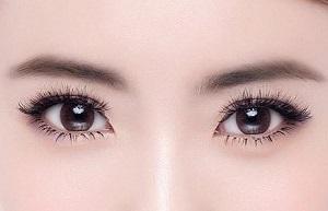 玉林割双眼皮怎么避免术后出现并发症的情况2