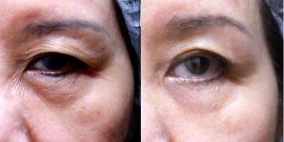眼周出现在皱纹要怎么解决?
