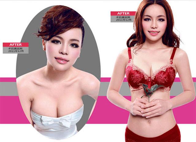 哪一种丰胸方式比较适合你?假体or自体脂肪?