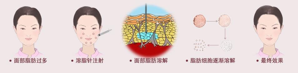 双下巴吸脂过程图