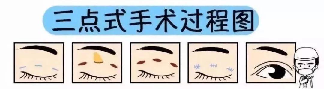 韩式三点手术过程图