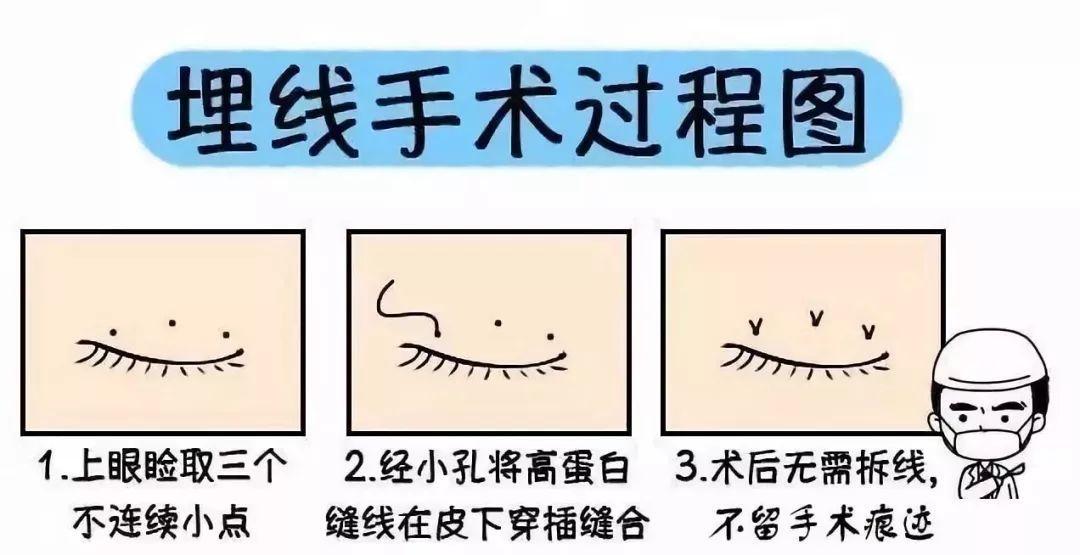 埋线双眼皮过程图