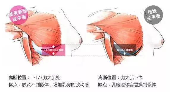 假体隆胸放置部位