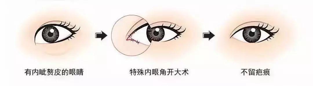 玉林华美双眼皮